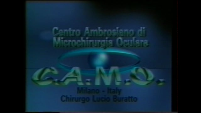 Intrastromal Keratomileusis with Excimer Laser (Buratto Technique) video – 1992