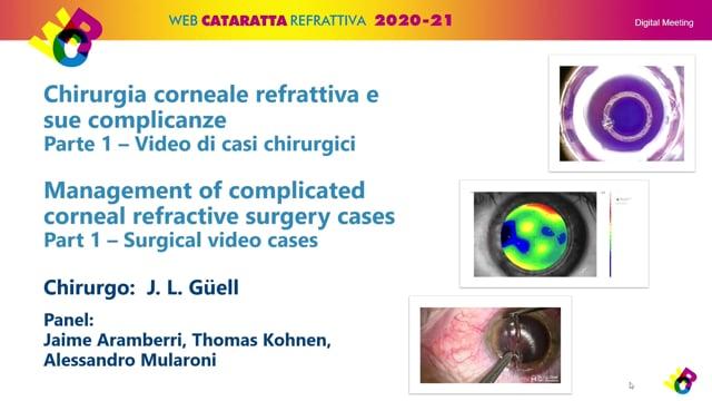 WCR – CHIRURGIA CORNEALE REFRATTIVA