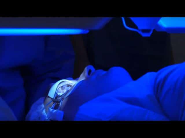 VCR 2017: live surgery form Koln (Germany): Bilateral ReLEx Smile. Surgeon: B. Meyer
